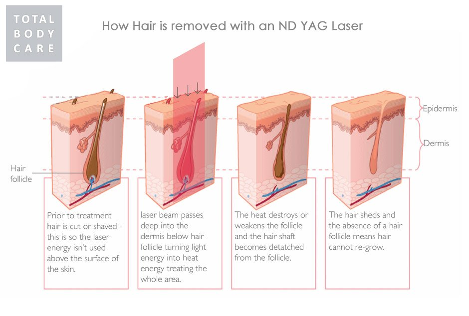 Laser Hair Removal at Total Body Care