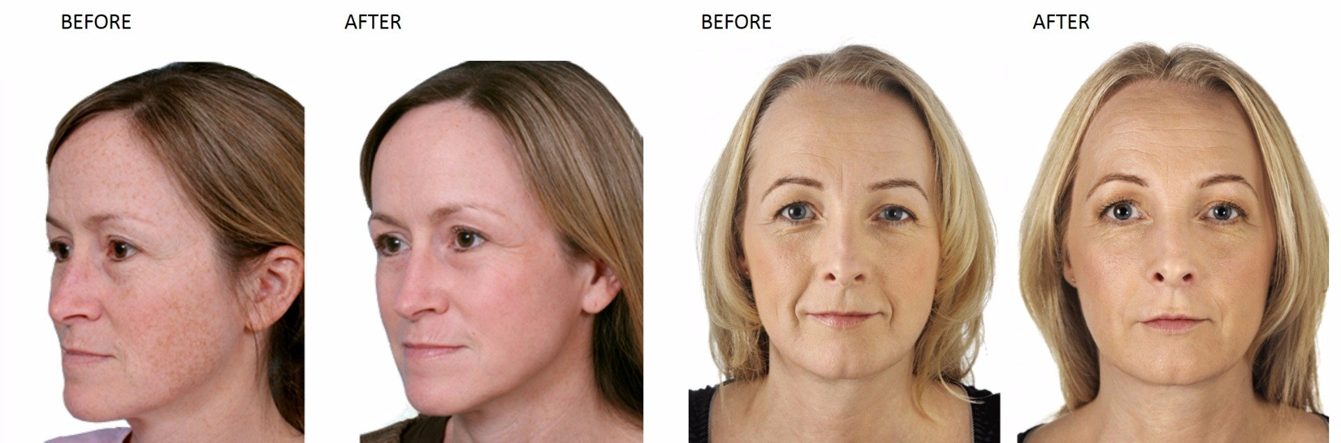 Laser Skin Rejuvenation at Total Body Care