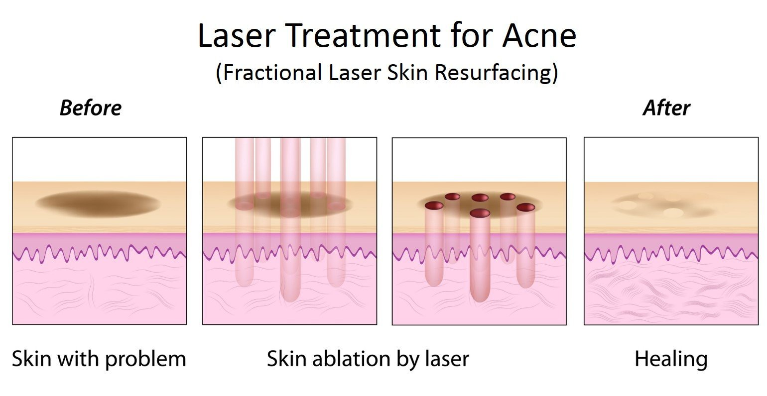 Acne treatment with Laser at Total Body Care