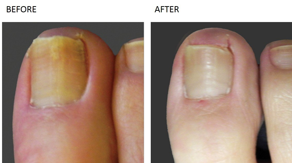 Nail Fungus Treatment at Total Body Care