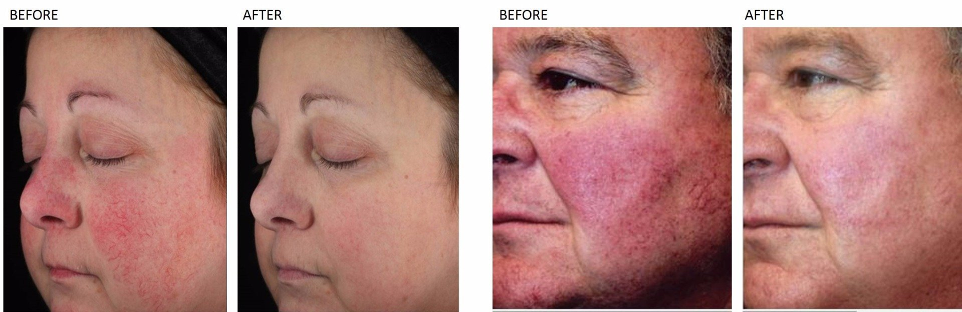 Rosacea Treatment at Total Body Care