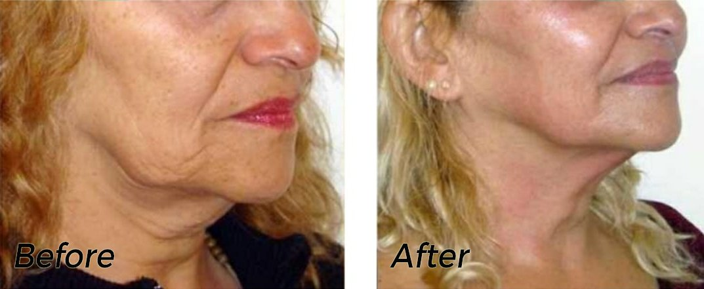 Skin Tightening using HIFU by Levura