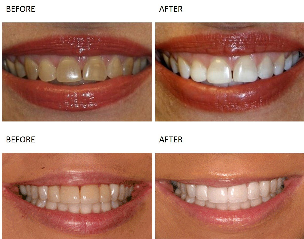 Teeth Whitening at Total Body Care