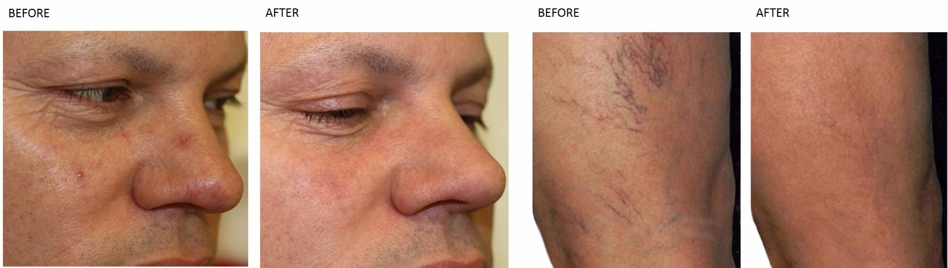 Thread Vein Treatment at Total Body Care