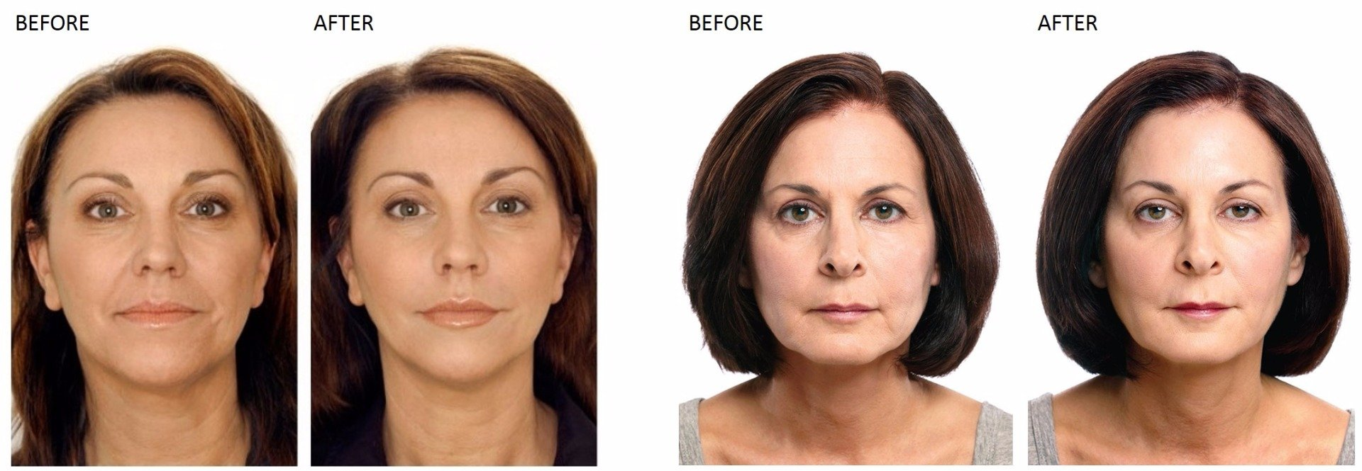 Botox and Cosmetic Injections at Total Body Care