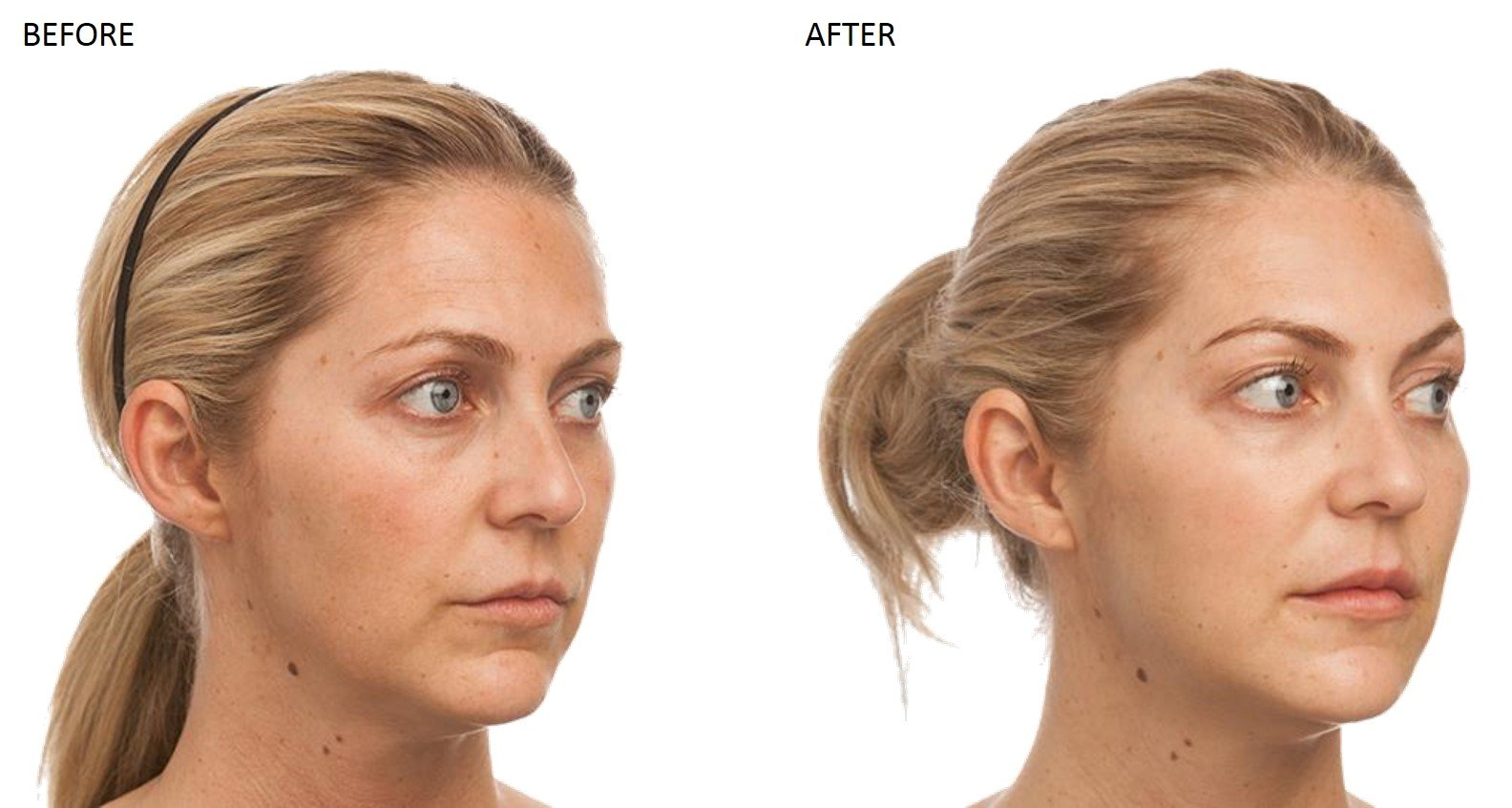 Dermal Fillers at Total Body Care