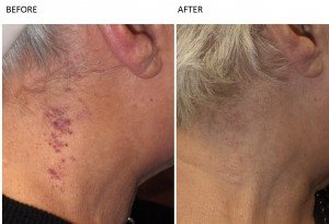 Pigmentation Treatment Vascular Lesions at Total Body Care