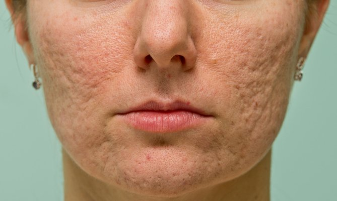 Acne and Acne Scar Treatment at Total Body Care