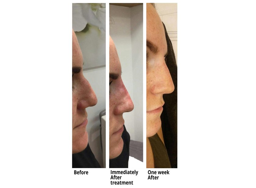 Non Surgical Rhinoplasty Nose Job at Total Body Care
